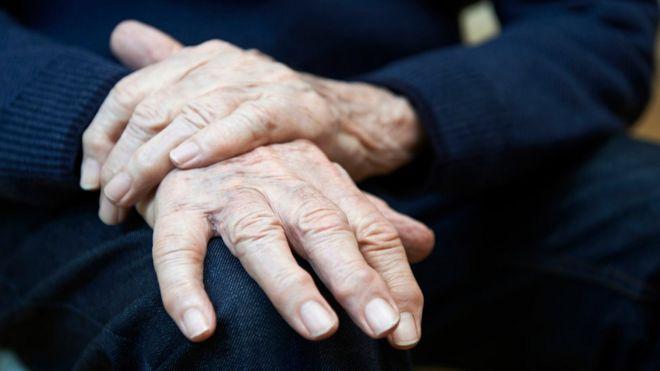manos de un hombre con Parkinson