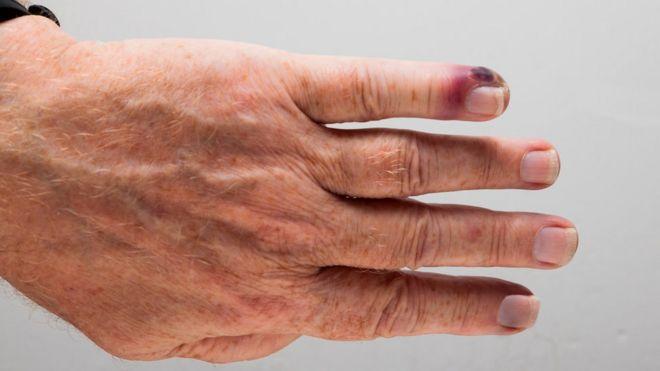 dedo infectado