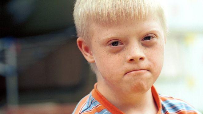 Niño con síndrome de Down.