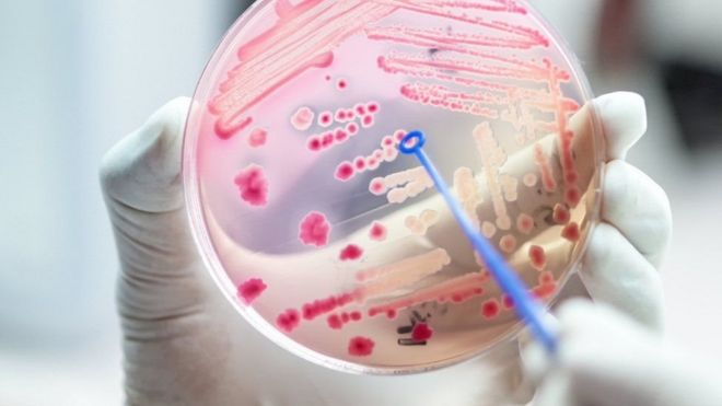 خون میں جراثیم کی موجودگی