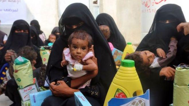 الحرب في اليمن: الأمم المتحدة تحذر من مجاعة وشيكة تهدد نصف السكان
