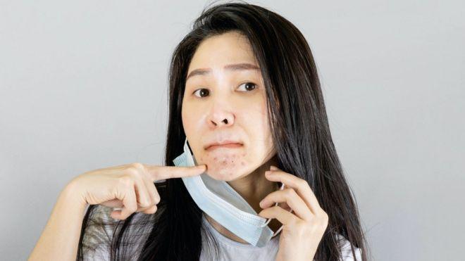Son varios los especialistas que hablan del incremento de casos de acné por el uso continuado de la mascarilla.