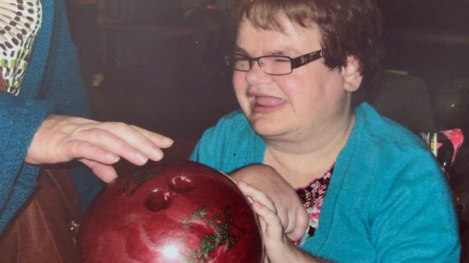 Why did Rachel Johnston die after having all her teeth