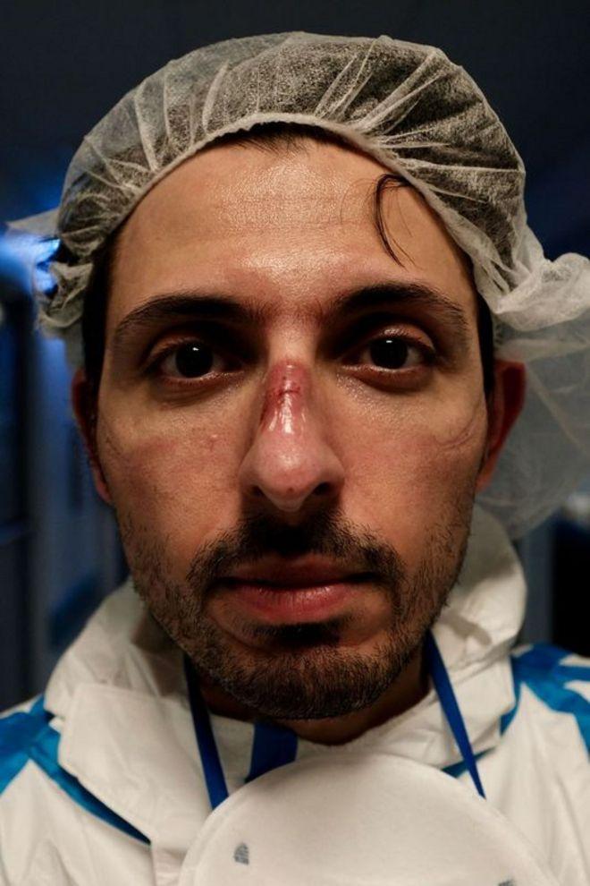 enfermeiro mostra feridas feitas por uso prolongado de máscara