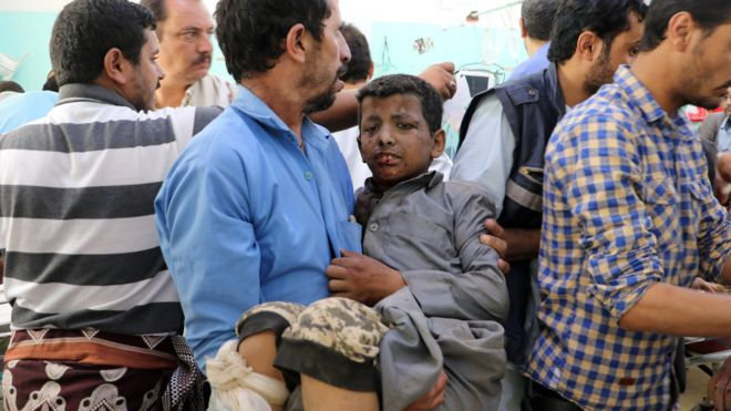 A Yemeni man holds a boy injured in an air strike in Saada (9 August 2018)