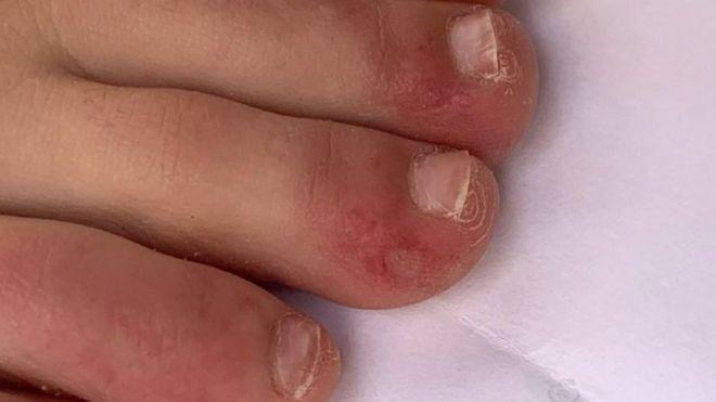 """""""Ковидные пальцы"""" и сыпь как симптомы Covid-19. Прослеживаются пять видов высыпаний"""