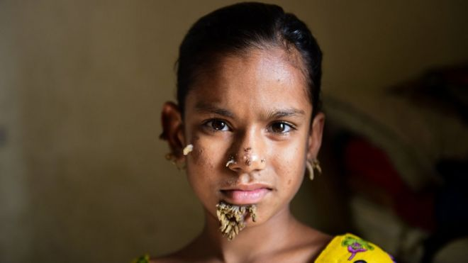 Bangladeshi girl may be first female with 'tree man syndrome