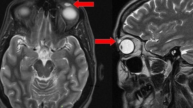 Una resonancia magnética mostró el quiste sobre el ojo de la mujer.