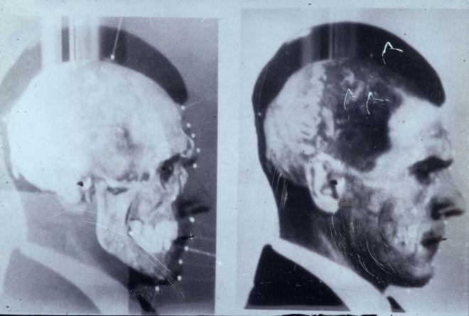 La Segunda Muerte De Josef Mengele El Sanguinario Médico Nazi Que