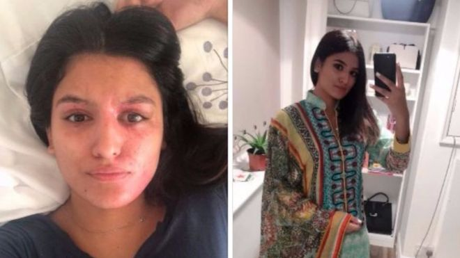 Images of Resham Khan after the attack, before and after applying makeup