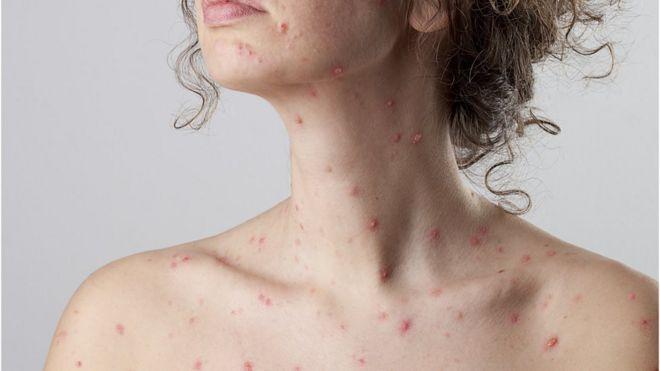 Mulher com sarampo no colo e pescoço