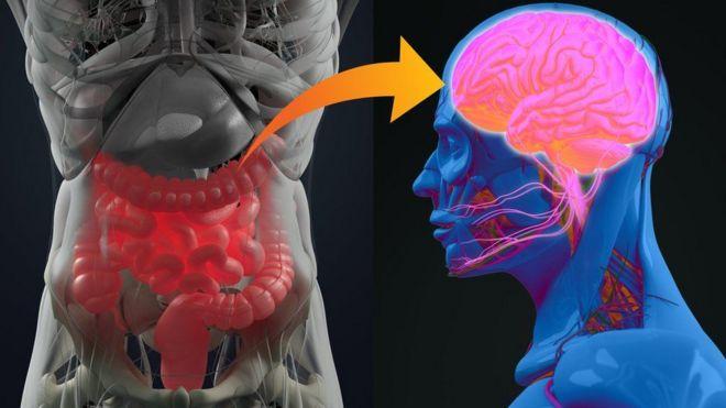 Ilustração mostra o sistema digestivo e a doença neurológica