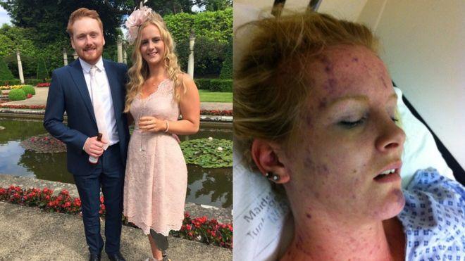 Изображение Эми с менингитом W и после ее выздоровления