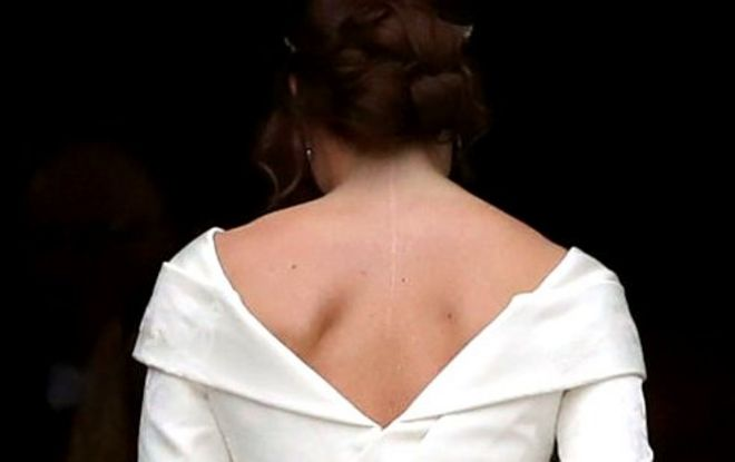 Princess Eugenie: 'I wanted my wedding dress to show my scar' - BBC News