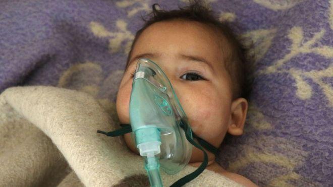 Criança síria recebe tratamento após suposto ataque químico em Khan Sheikhoun no dia 4 de abril de 2017