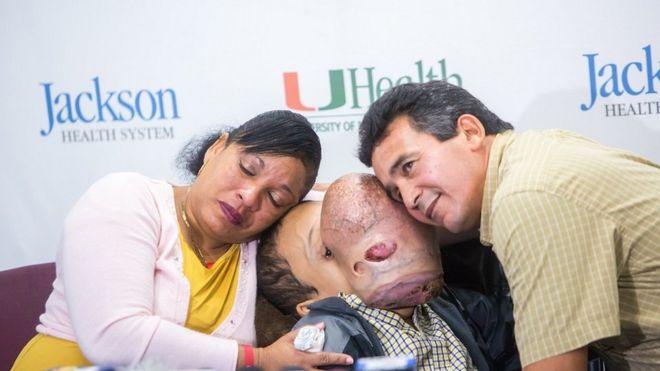 Muere Emanuel, el niño cubano con un gigantesco tumor en la cara que fue operado en Estados Unidos