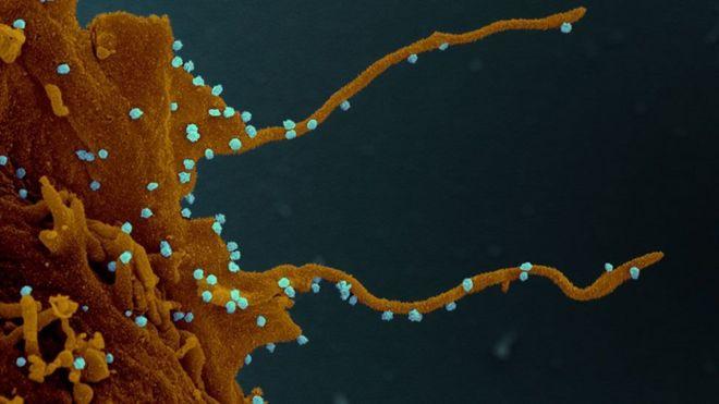 La célula infectada, siguiendo las instucciones del virus (en azul), desarrolla largos tentáculos para infectar otras células.