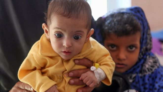 A child suffering from malnutrition in war-ravaged Yemen, 21 November