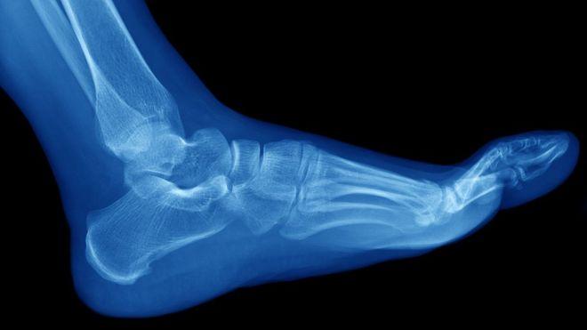 Radiografía de un pie