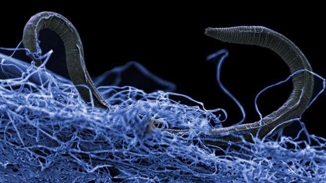 ابعاد گسترده حیات در زیر زمین تخمین زده شد - جاناتان آموس، خبرنگار علمی بی بی سی