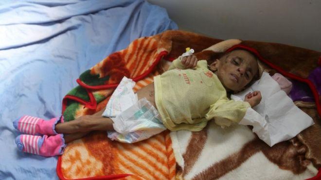 طفل يمني يكابد وباء الكوليرا