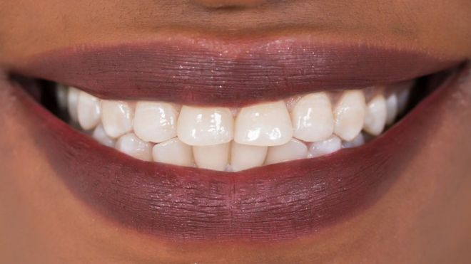Image result for People with damaged teeth in Nigeria