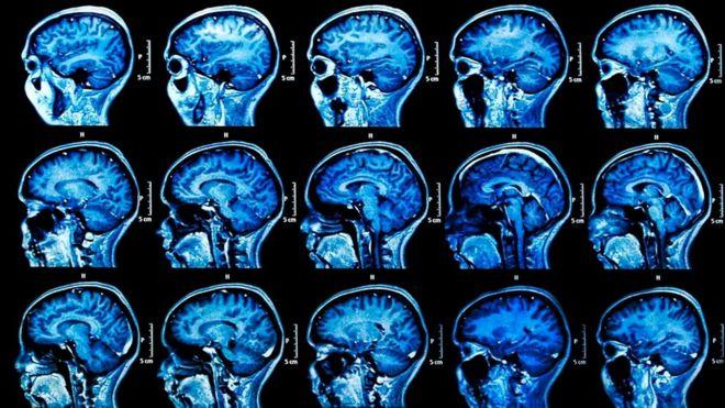 Периоды стресса могут активизировать вирус герпеса, и это порой имеет далеко идущие последствия для мозга человека