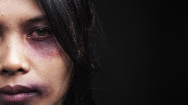 Una mujer golpeada