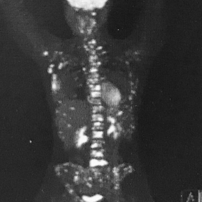 An X-ray of Nicky Newman's body