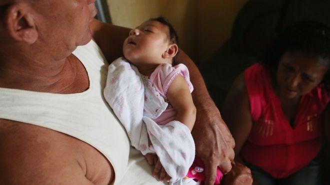 Трехмесячная Алиса Витория Гомес Безерра с микроцефалией, которую держит ее отец Жоао Батиста Безерра в Ресифи, Бразилия. 27 января 2016