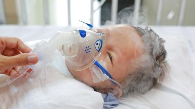 Niño con enfermedad respiratoria