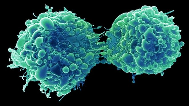 Bladder cancer attacked and killed by cold virus