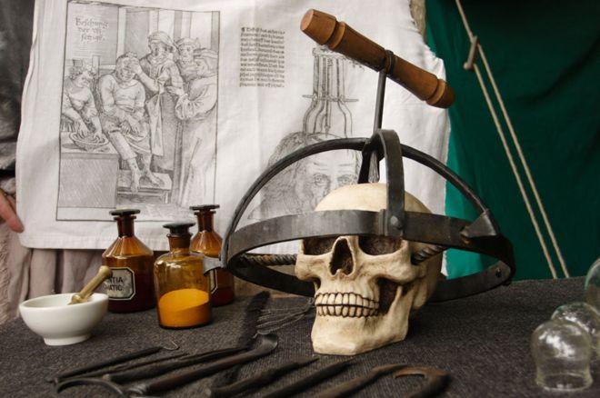 Un cráneo con un aparato para perforarlo.