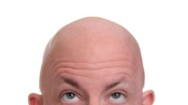 Un hombre pelado se mira la cabeza