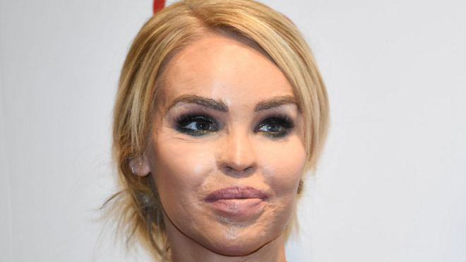 katie piper trying to deal with acid attacker release bbc news
