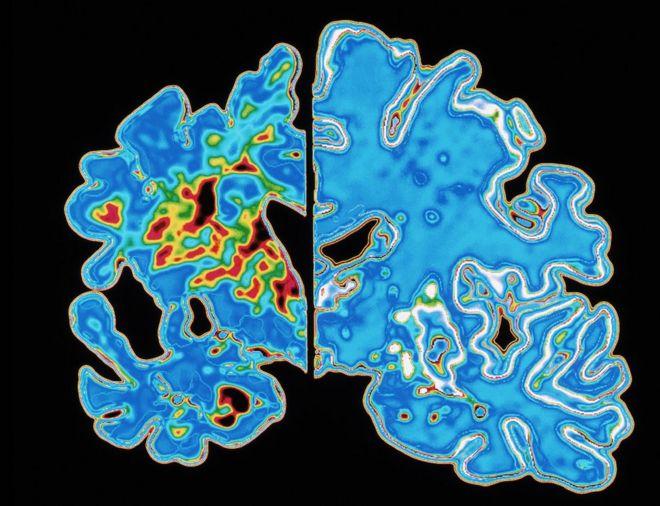 مخ مصاب الخرف