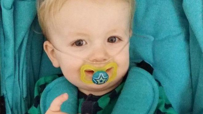 الطفل الذي حير الأطباء بسبب مرضه الذي لا يُعرف له اسم