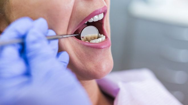 Affordable Dental Care for the Elderly