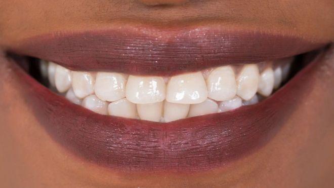 Diş çürüğü Ilacı Dolguların Yerine Geçebilir Bbc News Türkçe