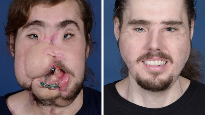Cameron Underwood: Face transplant means I can smile again