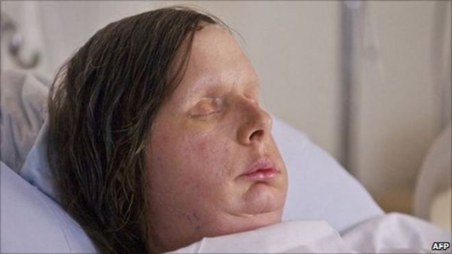Charla Nash's new face revealed after US chimp attack - BBC News