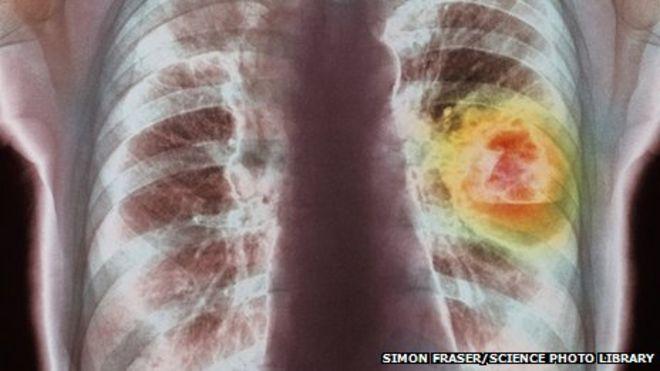 Рентген грудной клетки, показывающий рак легких