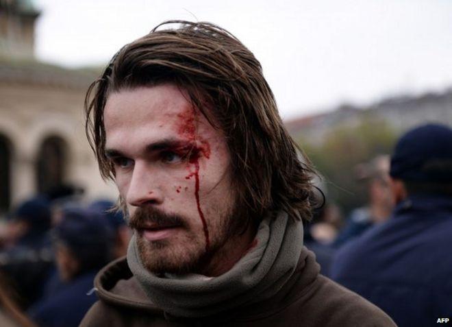Раненая протестующая в Софии, 12 ноября (фото Анны Стамболиевой)