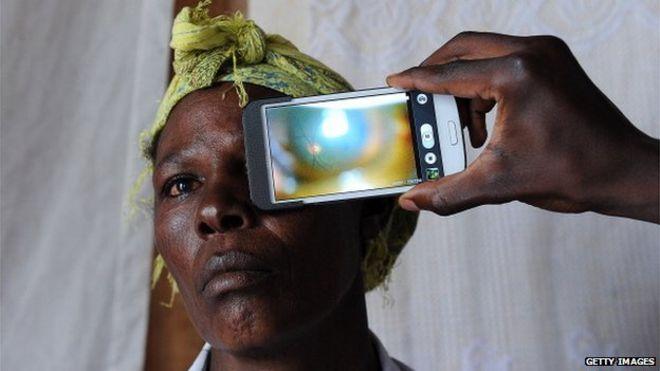 Смартфон сканирования глаз
