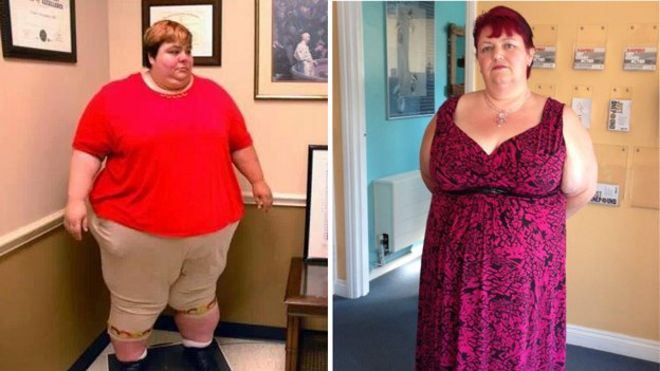 Victim Of Fat Shaming Loses 25 Stone After Surgery Bbc News