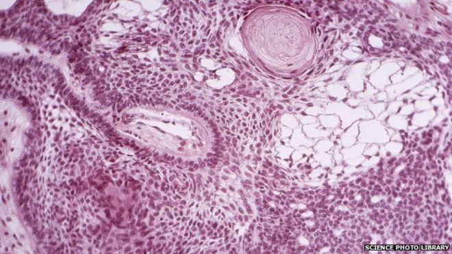 Cancer-killing stem cells engineered in lab - BBC News