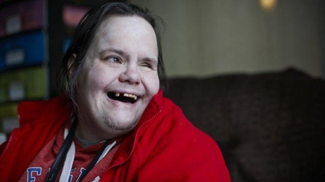 free disability dating uk indian