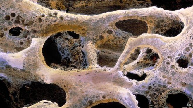 Крупный план кости