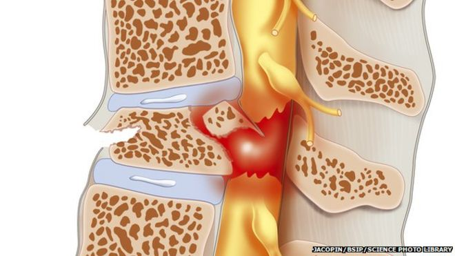 Spinal cord injury may respond to cancer drug - BBC News