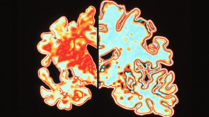 Brain with Alzheimer's disease, on the left, compared to a healthy brain, on the right.
